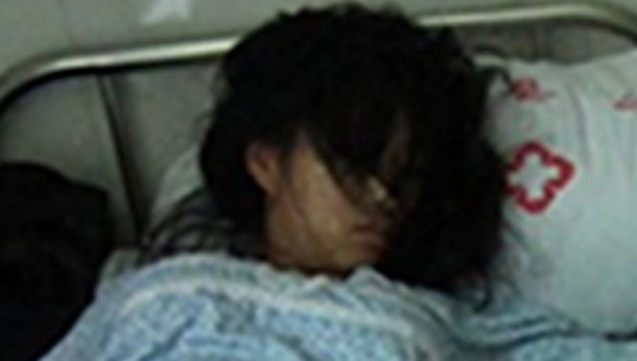 A detail of the photo of Feng Jianmei alongside her aborted fetus