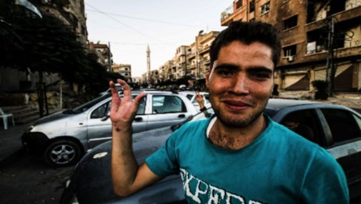 Abu Ali, an Free Syrian Army fighter, lost two of his middle fingers when he fired with an explosive bullet