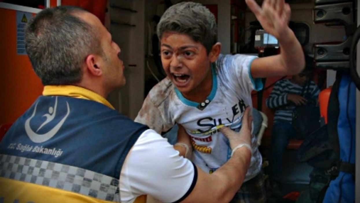 An injured boy after a missile launched from Syria struck Kilis, Turkey.