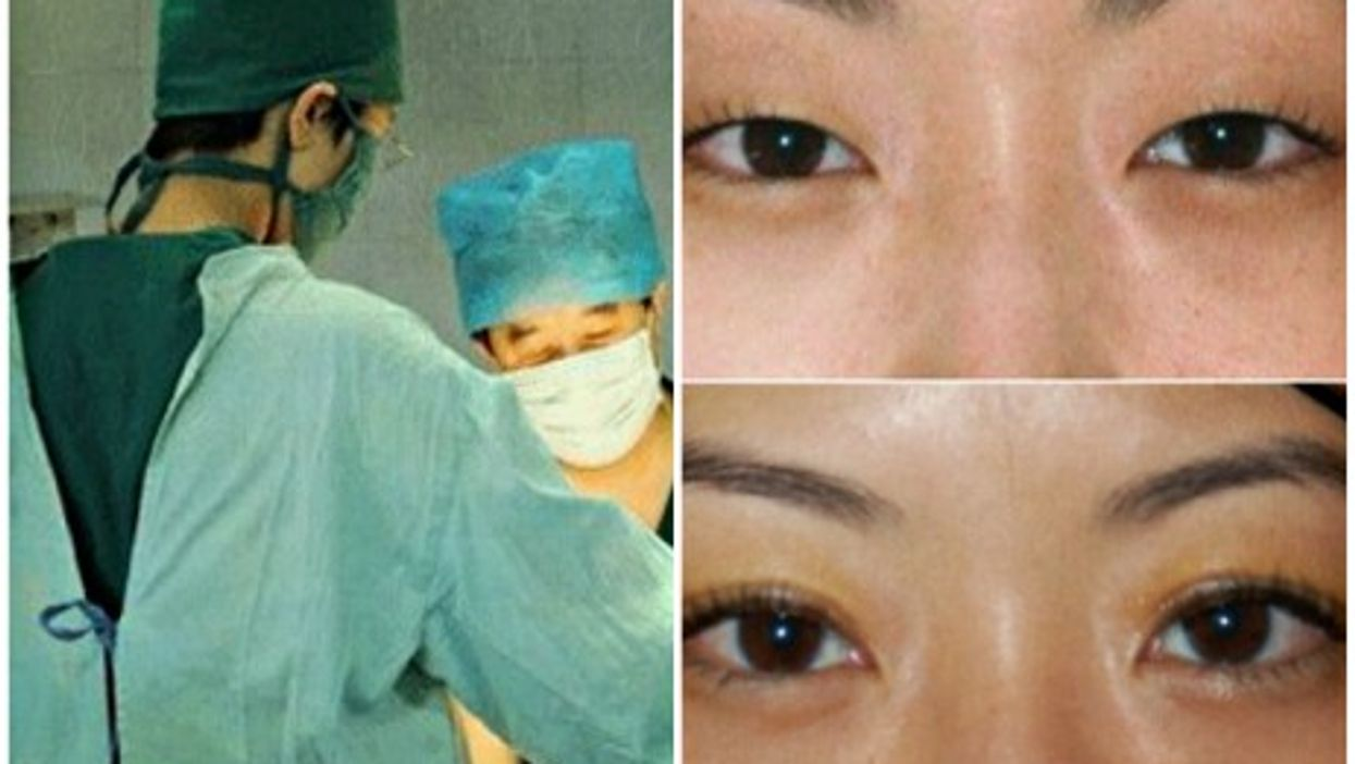China spends $2.5 billion a year on cosmetic surgery
