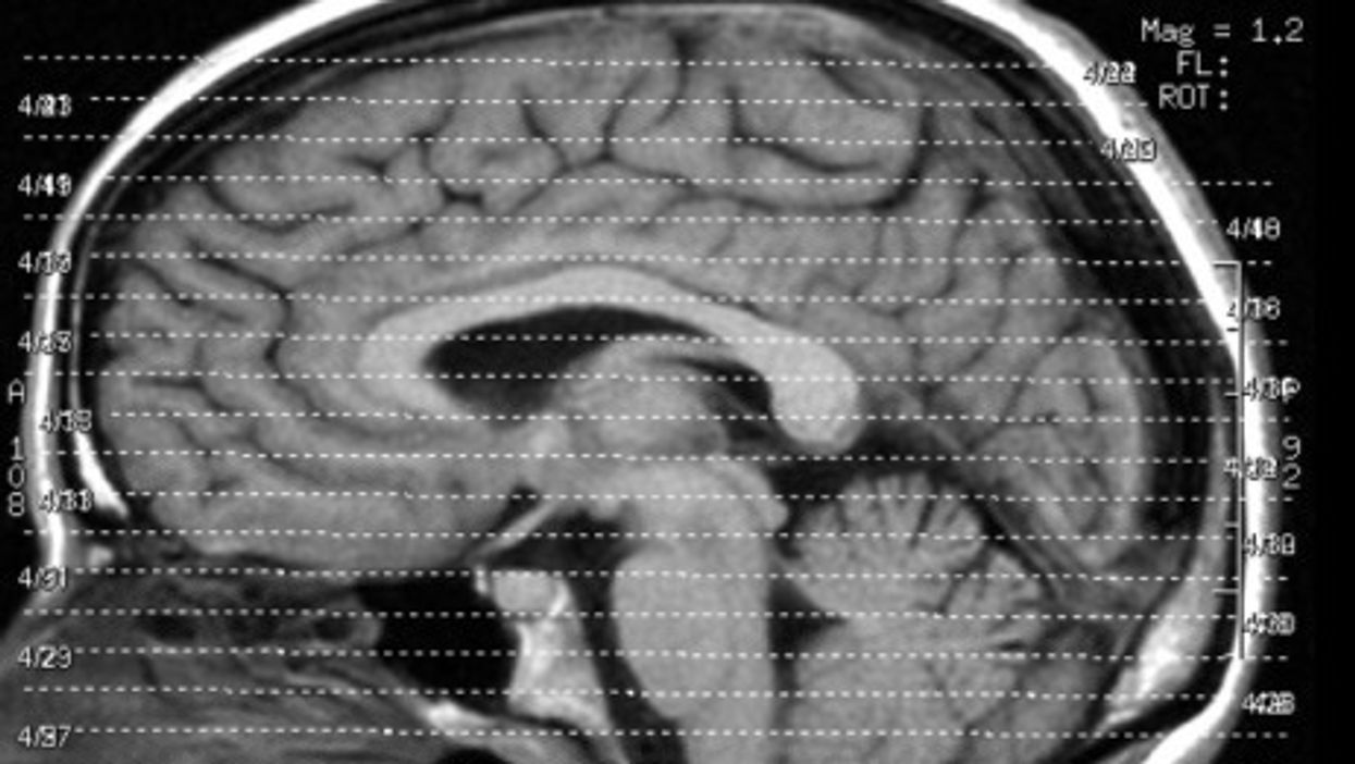 Human brains are relatively big and particularly dense